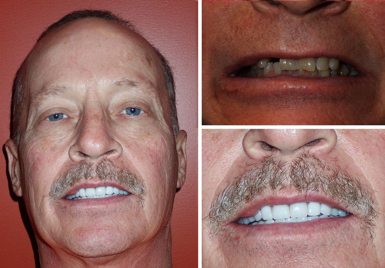 Smoler Smiles Before/After Photos