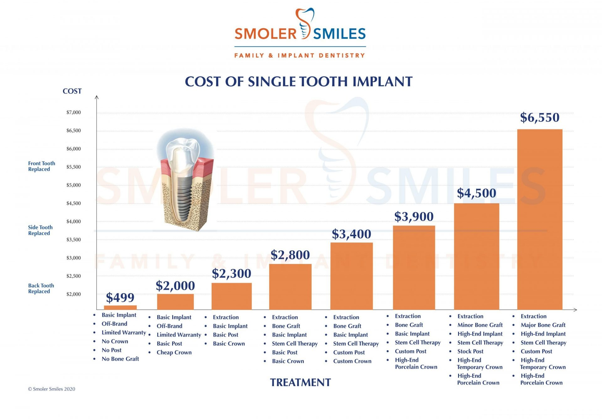 single tooth implant cost