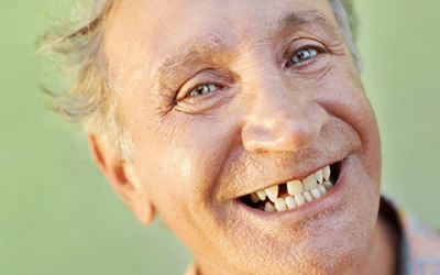 Implant Supported Dentures & Partial Dentures